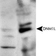 PAB12447 - Dynamin-1-like protein