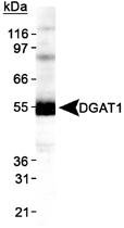 PAB12449 - DGAT1