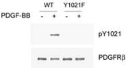 PAB1246 - CD140b / PDGFRB