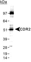 PAB12460 - CDR2