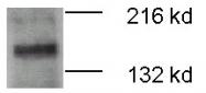 PAB12477 - ATP7B