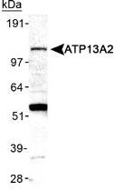 PAB12479 - ATP13A2 / PARK9