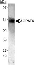 PAB12492 - AGPAT6