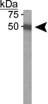 PAB12517 - Beclin-1-like protein 1
