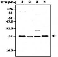PAB1252 - Peroxiredoxin-2 / PRDX2