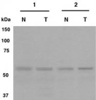 PAB12523 - Gliomedin