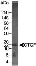 PAB12524 - CTGF