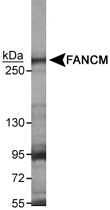 PAB12529 - FANCM