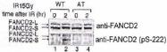 PAB12530 - FANCD2