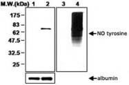 PAB1254 - Nitrotyrosine