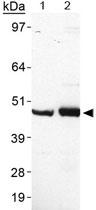 PAB12542 - Perilipin-5