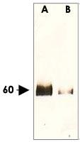 PAB12600 - AKT1 / PKB
