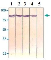 PAB12603 - Catenin beta-1