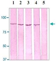 PAB12605 - Catenin beta-1