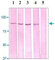 PAB12606 - Catenin beta-1