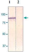 PAB12607 - Catenin beta-1