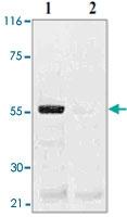PAB12640 - TP53 / p53