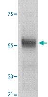 PAB12641 - TP53 / p53