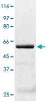 PAB12652 - AKT3 / PKB gamma