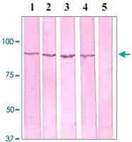 PAB12659 - Catenin beta-1