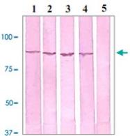 PAB12660 - Catenin beta-1