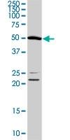 PAB1267 - Angiopoietin-5