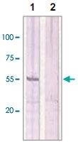 PAB12682 - Estrogen receptor beta