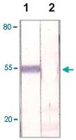 PAB12683 - FOXP1