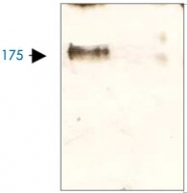 PAB12699 - LRP5