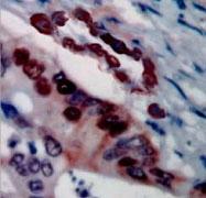 PAB12703 - SCGB2A1 / Mammaglobin B