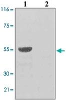 PAB12719 - TP53 / p53