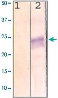 PAB12727 - Rhodopsin