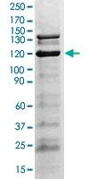 PAB12749 - Tyrosine-protein kinase JAK2