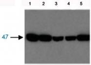 PAB12766 - Fumarylacetoacetase