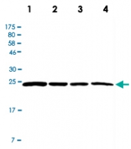 PAB12801 - Casein kinase II beta