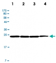 PAB12805 - UCHL1 / PGP9.5