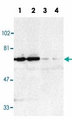 PAB12839 - TNFRSF21 / Death receptor 6 (DR6)