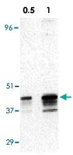 PAB12860 - RRM2B / P53R2