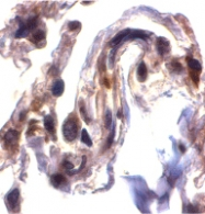 PAB12882 - Septin-4 (SEPT4)