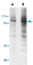 PAB12957 - Lysosome-associated membrane glycoprotein 1