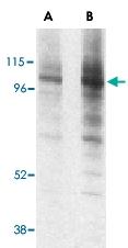 PAB12957 - CD107a / LAMP1
