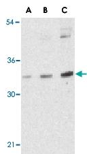 PAB12958 - BMI-1 / RNF51