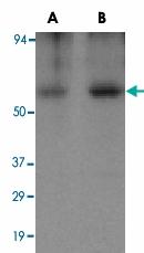PAB12964 - Apolipoprotein J / Apo J