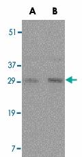 PAB12974 - CD254 / RANKL