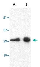 PAB12985 - CD274 / PDL1