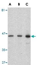 PAB12993 - Presenilin-1