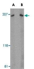 PAB13013 - ARHGEF17 / TEM4