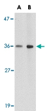PAB13027 - Brain link protein 1 / BRAL1