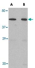 PAB13033 - Neuronal pentraxin-2