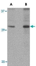 PAB13055 - DNAL1